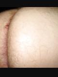 Ass-crack